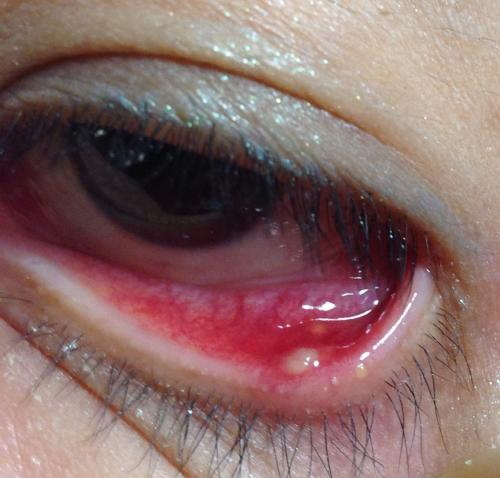 下瞼にものもらいが出来てしまいました。