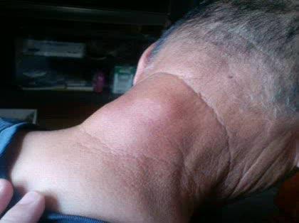 付け根 しこり の 首