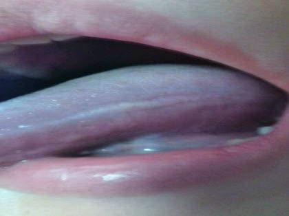 が 痛い ベロ パイナップルで舌がピリピリ痛い原因は?治し方や予防・対策は?  