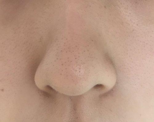 鼻 いちご