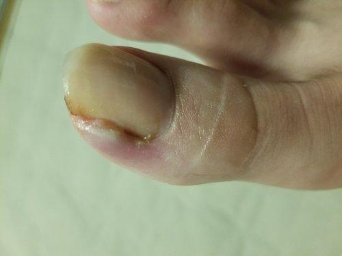 巻き 爪 病院