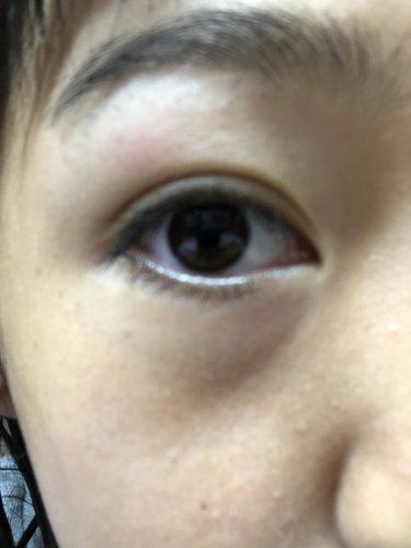 が 朝起き たら 痛い 目 目の奥が痛い時や周りの骨が痛い時に疑われる病気とは? 眼科医が解説