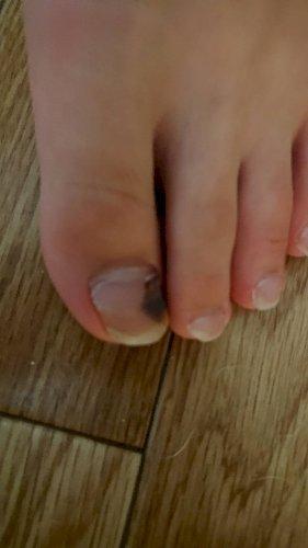 足 の 親指 爪 黒い