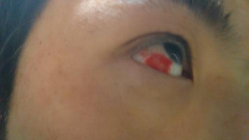 「目の一部が真っ赤になりました。どうすれば」の質問