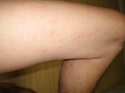 かゆみ 全身 発疹 なし