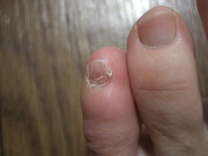「足の小指の爪が痛いです(二度目ですごめん」の