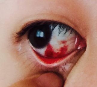 結膜下出血??? -朝起きたらこのような目になっていて調べた ...