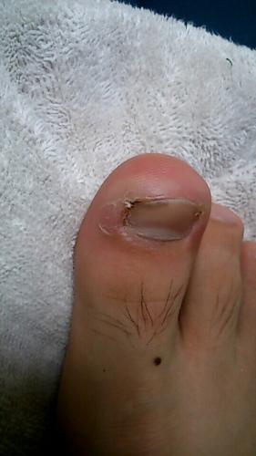 の 腫れる 足 親指