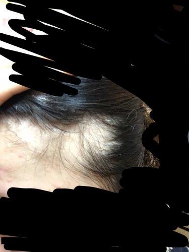 何 症 科 脱毛 円形