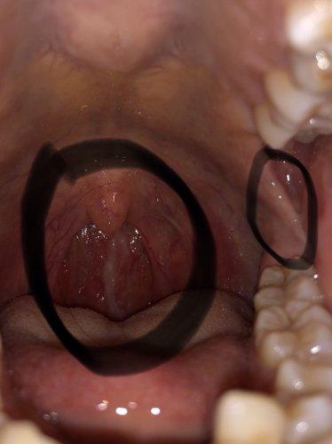 喉 の 奥 臭い 違和感