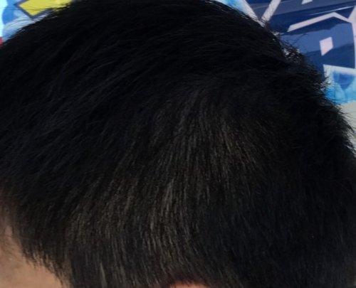 側 頭 部 薄い