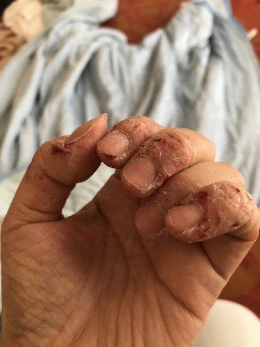 を 皮 指 癖 の むく