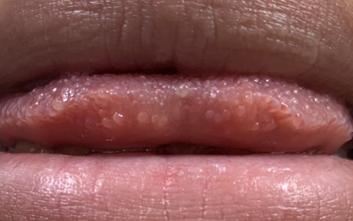 が する 舌 ひりひり