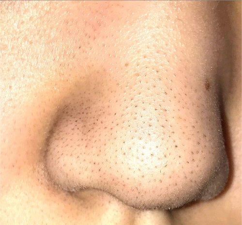 鼻の黒ずみどうしても取れない