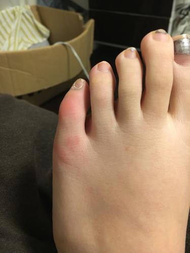 腫れ 足の指の付け根