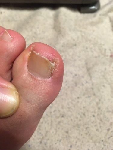 親指 臭い の 足 爪