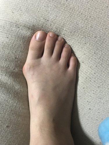 この外反母趾は軽度ですか? ,この外反母趾は軽度ですか