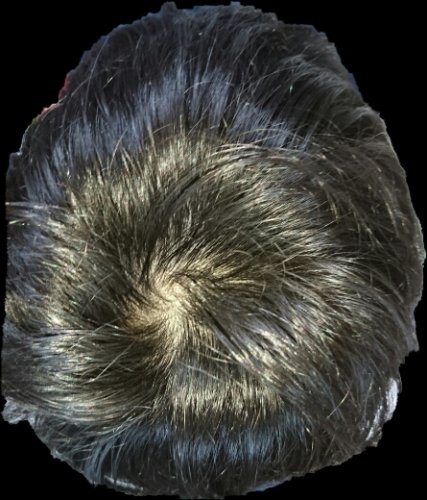 頭頂部 薄毛 画像 20代