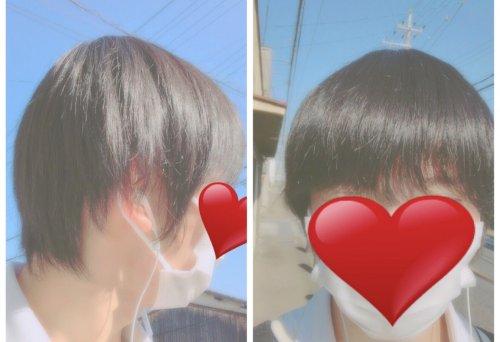 伸ばす 髪の毛 早く