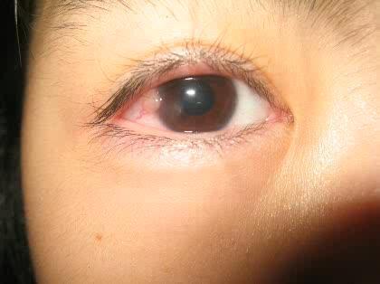 白い が の 黒目 ふち