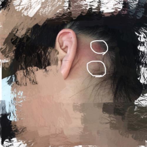 耳 の 後ろ 腫れ 触る と 痛い