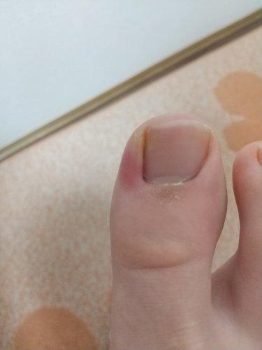 の 親指 が 腫れる 足