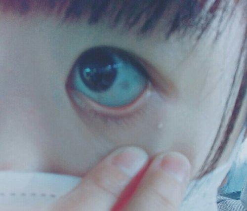 中 ほくろ の 目