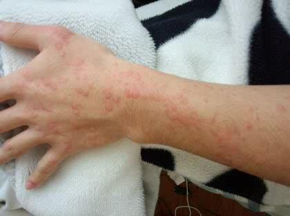 腕 に 赤い 斑点 痒く ない