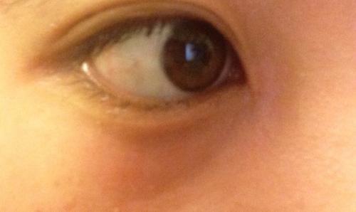 ヒリヒリ 痛い 目 が 目が痛い