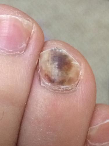 「足の爪について」の質問画像