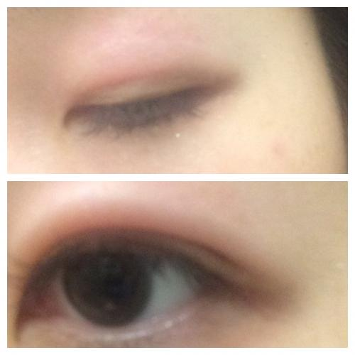 突然 まぶた が 腫れる 片目 まぶたの腫れ - 20. 眼の病気 - MSDマニュアル家庭版