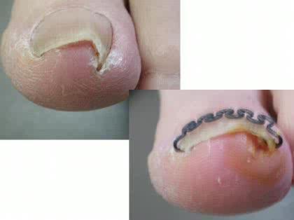 「足指【化膿】 手術!