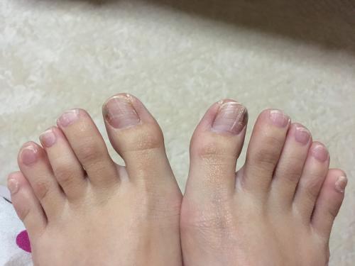 半年以上前から爪に白い線がたくさんできています 今まで痛くも痒く