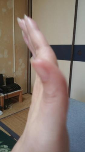 🍀親指 の 付け根 痙攣