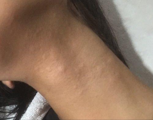 な 刺され た 腫れ に よう 蚊 蚊アレルギーとは…かゆみなどの主な症状・EBウイルス感染との関係 [アレルギー]