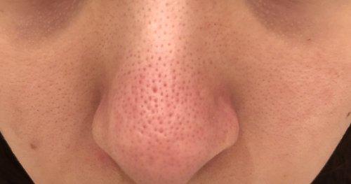 毛穴 方法 の 鼻 を なくす