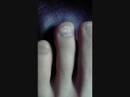 「靴擦れで爪がはがれてしまいました」の質問画像