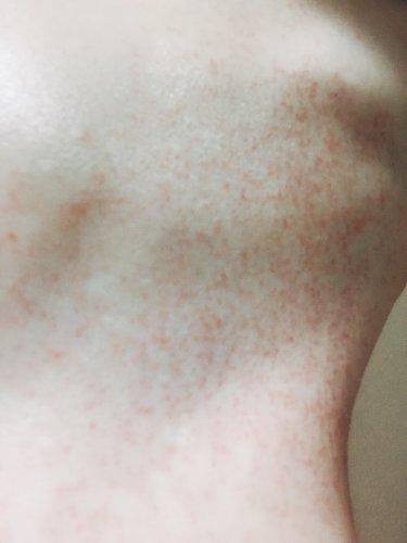 お風呂上がり 赤い斑点 かゆい
