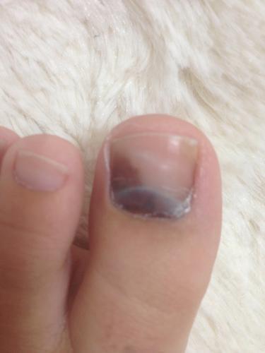「足の親指の爪が黒くなってしまいました。」の