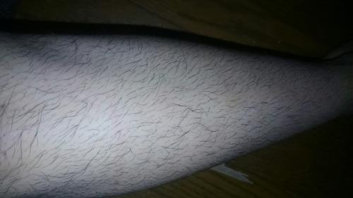 毛 濃く なる 剃る すね