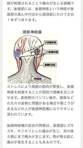 後頭部 痛い 左 が