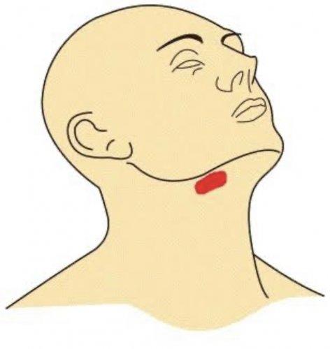 自壊 膿瘍 バルトリン 腺