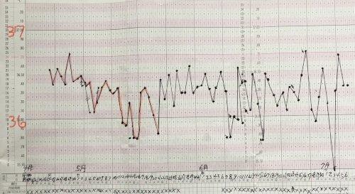 体温 更年期 基礎