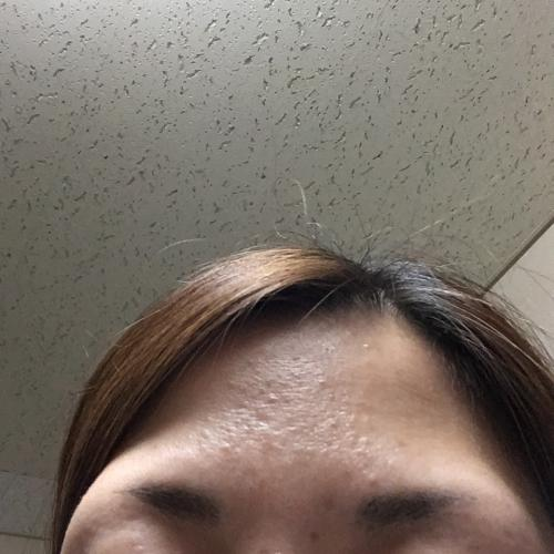 小さい ぶつぶつ おでこ なぜ?突然顔に湿疹(ブツブツ)ができた…原因はストレス?皮膚科医監修