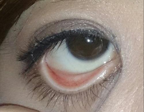下瞼裏の色 -画像有りです。こんにちは。友達に突然、「上見て ...
