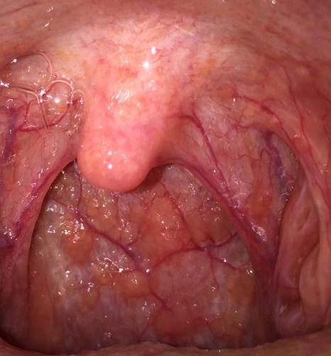 の 奥 赤い ぶつぶつ 喉