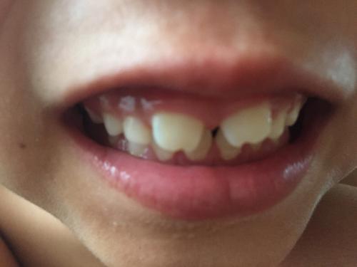歯 乳歯 すき っ 子供の前歯に見られる歯並び4選。原因と対処法|歯科衛生士がお口の悩みに答えます