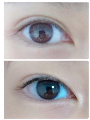 が 重い 瞼