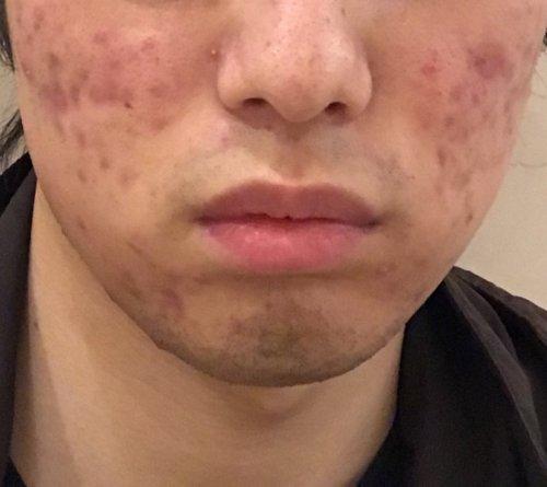 アレルギー ニキビ