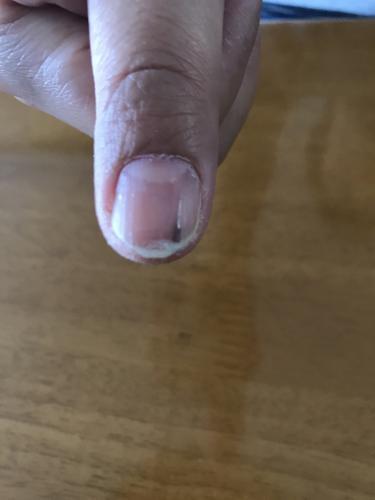 爪 に 黒い 線 が 入る